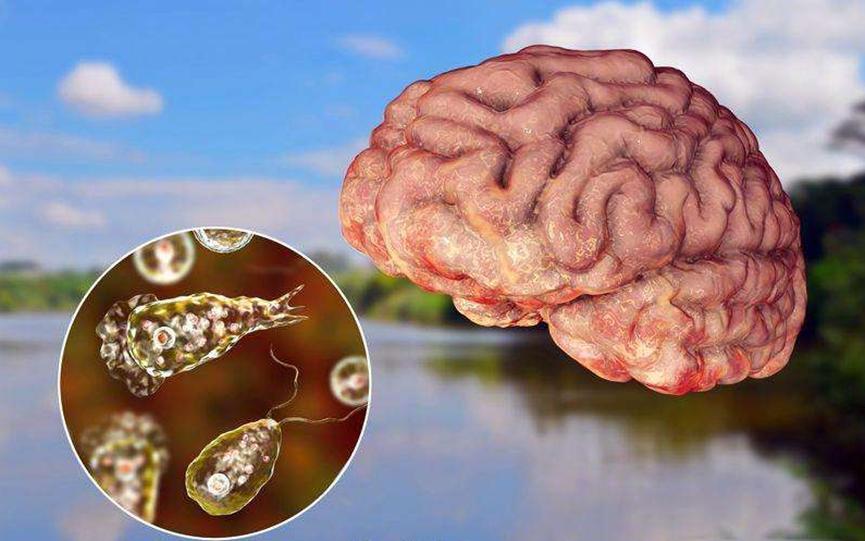 美国佛罗里达再现食脑虫感染病例,大众需做好预防任务